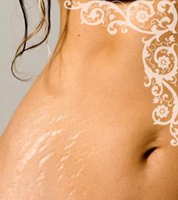 Растяжки на коже. Растяжки на коже: причины. Средства от растяжек на коже