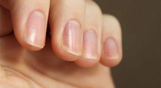Причины появления ребристых ногтей на руках и как бороться с этой проблемой?